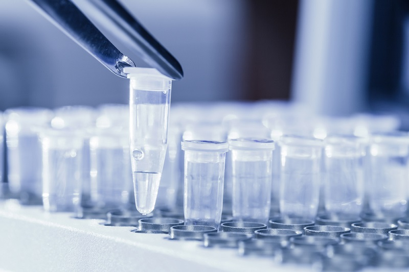 Pour de nombreux pros du tourisme, les tests antigéniques rapides réalisés dans les aéroports peuvent permettre de relancer l'activité - DR : DepositPhotos, nikesidoroff