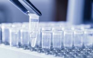 Les tests antigéniques, une solution à la crise du tourisme ?